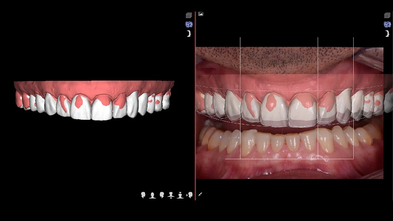 Correction of VDO: Fully digital workflow, integration of dental scanner, DSD and CAD/CAM